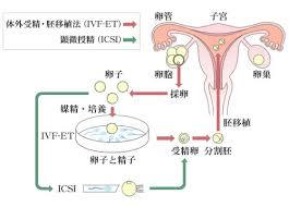 体外受精など.jpg